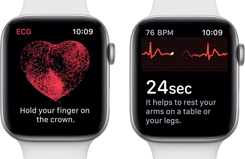 L'app ECG presente sugli Apple Watch serie 6.  Nightware app contro gli incubi. Credits: iPhoneItalia